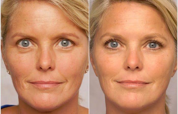 Renuvaline Skin Cream, truffa, effetti collaterali, controindicazioni