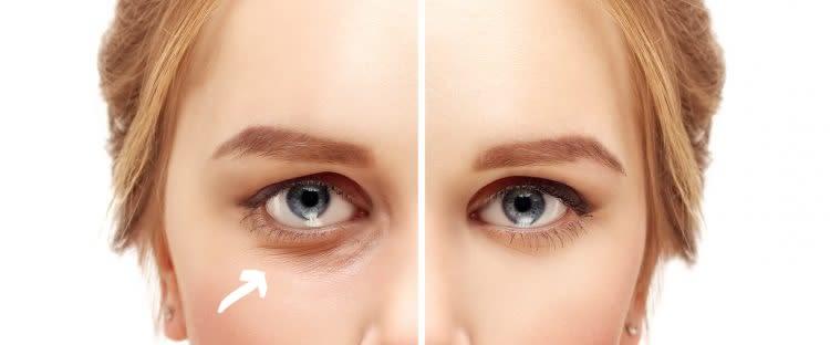 EyeSkin – controindicazioni – effetti collaterali