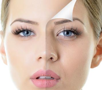 IRIS Filler Cream – controindicazioni – effetti collaterali