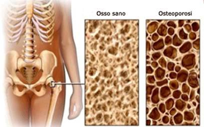 Osteoactive - originale - in farmacia - Italia