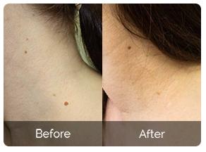 Skincell Pro - controindicazioni - effetti collaterali
