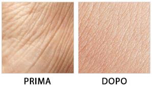 DermaVix - controindicazioni - effetti collaterali