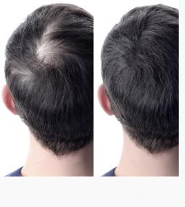 Foltina Plus - composizione - funziona - come si usa - ingredienti - per capelli
