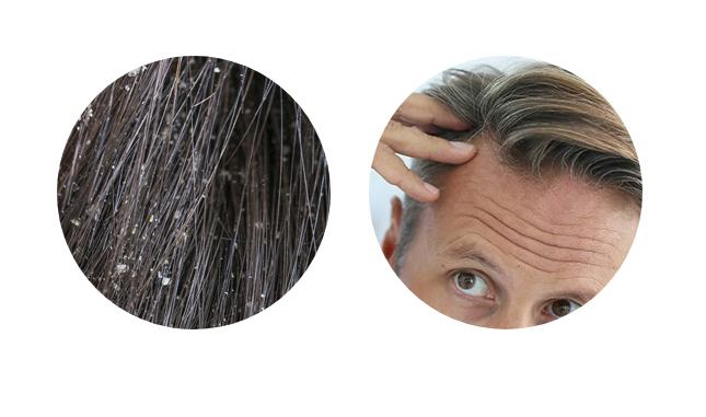 Pro-Hair 10 - originale - in farmacia - Italia