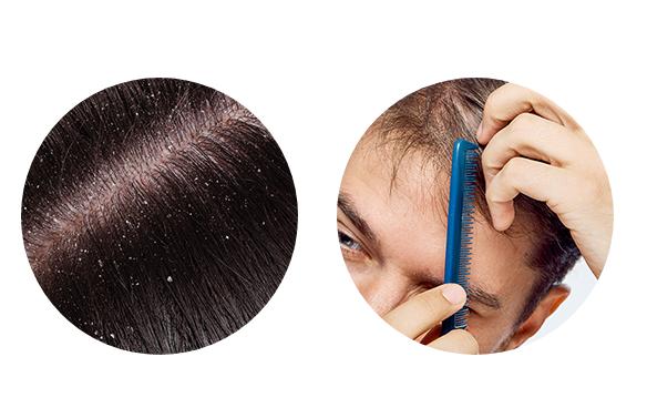 Pro-Hair 10 - prezzo - dove si compra - amazon - farmacia