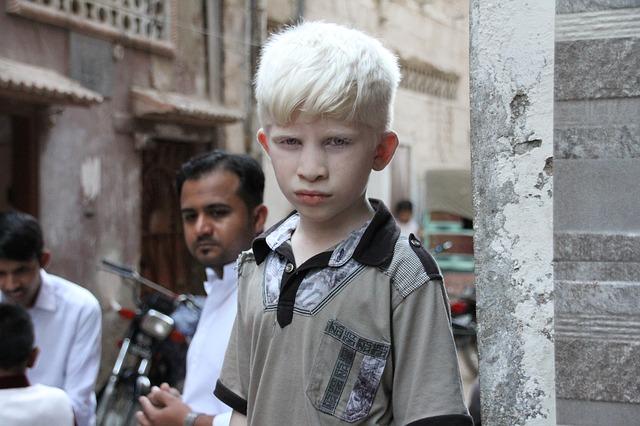 Albinismo tipologie, sintomi ed effetti