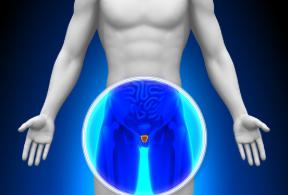 Qual è la diagnosi per il cancro alla prostata