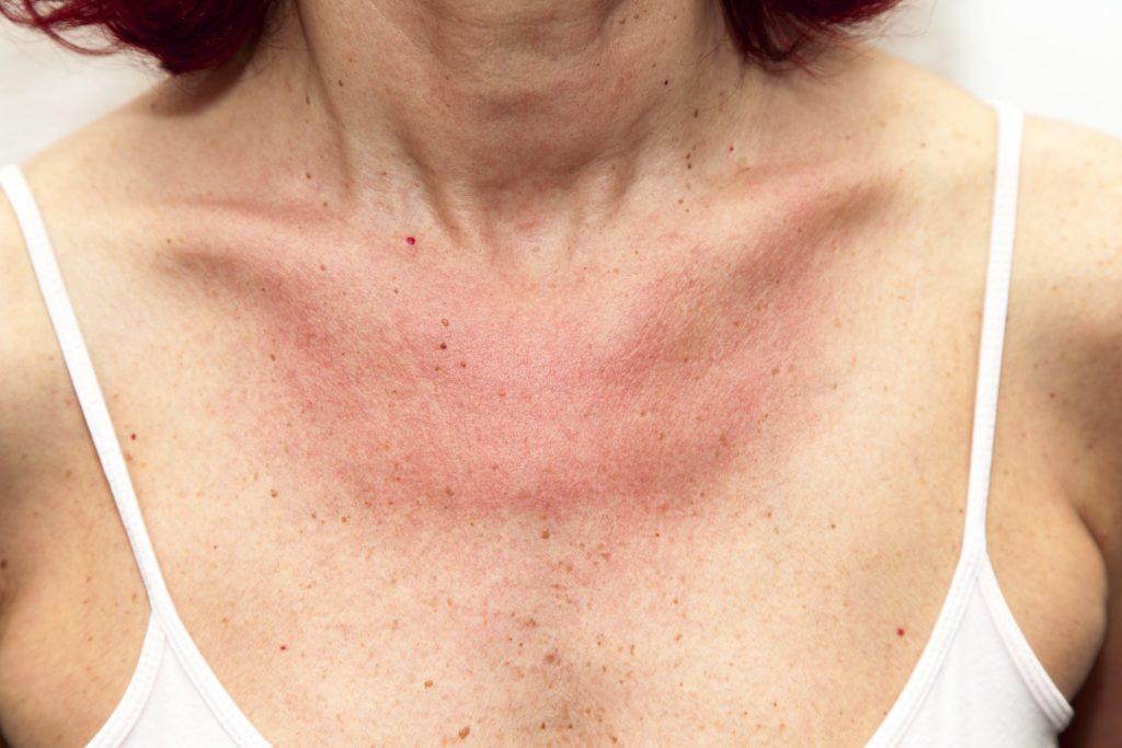 Essere allergici al sole: la fotoallergia