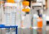 Mononucleosi sintomi, test, trattamenti e complicazioni