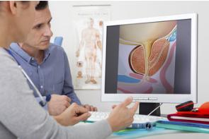 Prostata ingrossata cause