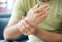 Artrite reumatoide cause, sintomi e trattamenti