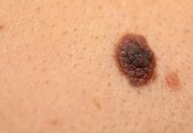 Il melanoma, una malattia della pelle
