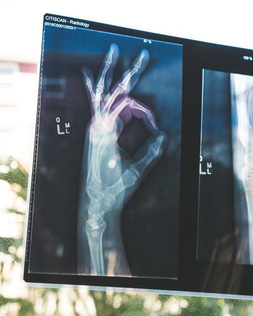 Osteoporosi cause e sintomi