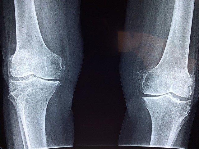 Osteoporosi diagnosi, prevenzioni e trattamenti