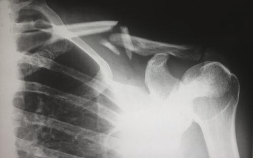 Osteoporosi quali sono le cause, i sintomi e i trattamenti