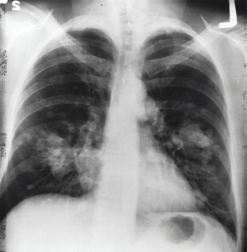 Riconoscere la tubercolosi diagnosi e sintomi