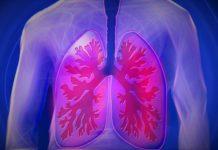 Tubercolosi come riconoscerla