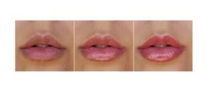 Vip's Lips - come si usa - ingredienti - composizione - funziona