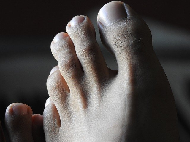 Onicomicosi sintomi, trattamento e prevenzione