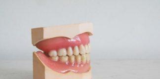 Dente rotto cosa fare quando un dente è rotto o scheggiato
