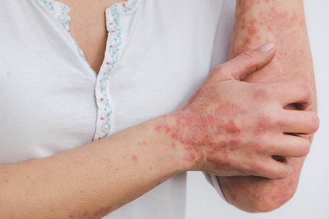 Psoriasi cause, sintomi, trattamento